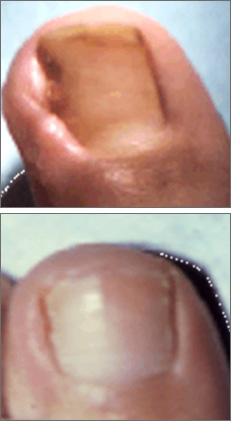 Quali farmaci trattare un fungo di unghie al bambino